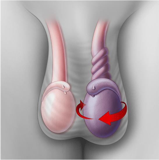 testicular torsion - Kelina Hospital