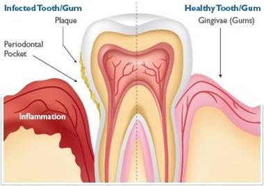 Kelina Hospital - Gum Disease