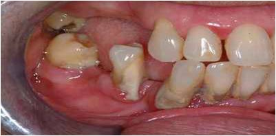 Kelina Hospital - Tooth Loss