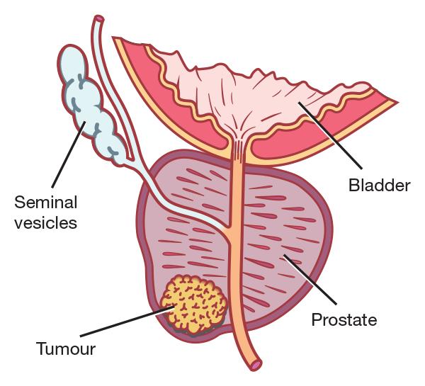 Prostate Cancer - Kelina Hospital